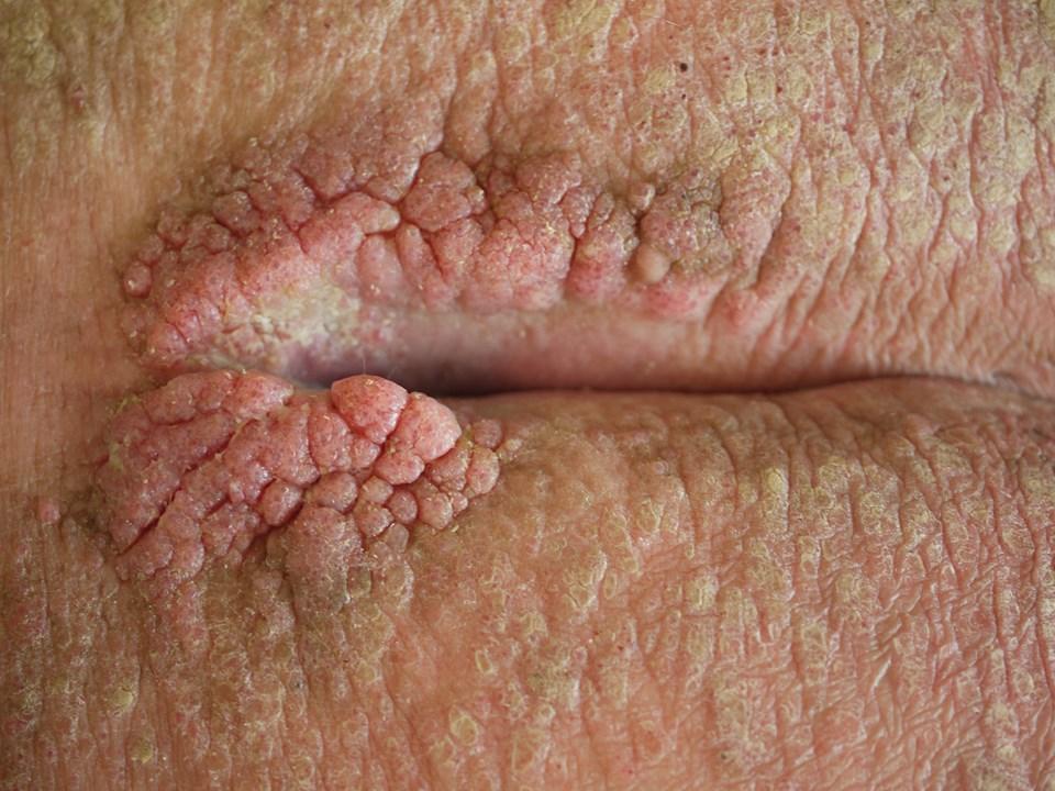 På pennis herpes Human penis