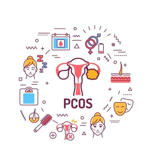 Ikke-alkoholisk fettleversykdom og polycystisk ovariesyndrom